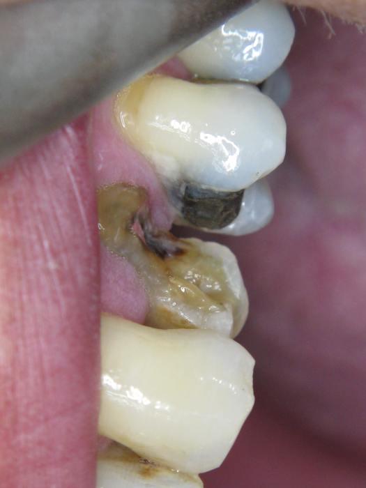 Defect premolaar 24