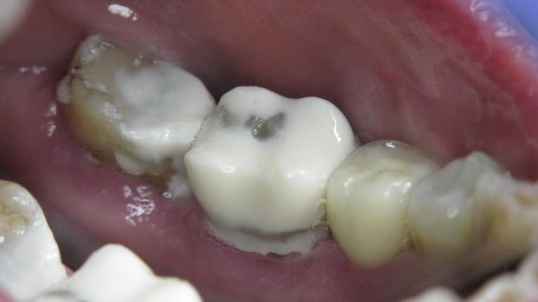 molars-4647-repaired