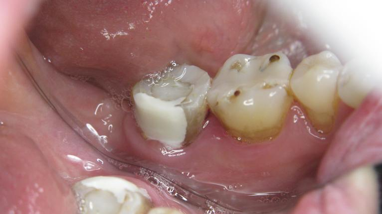 3-7-molar-rapair-1