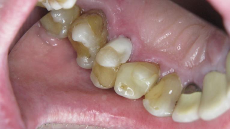 gcp-fill-premolar-15