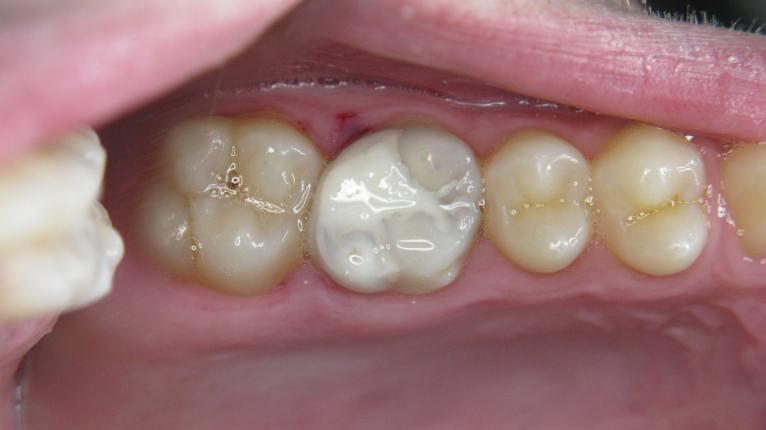 molar-26-repaired-2