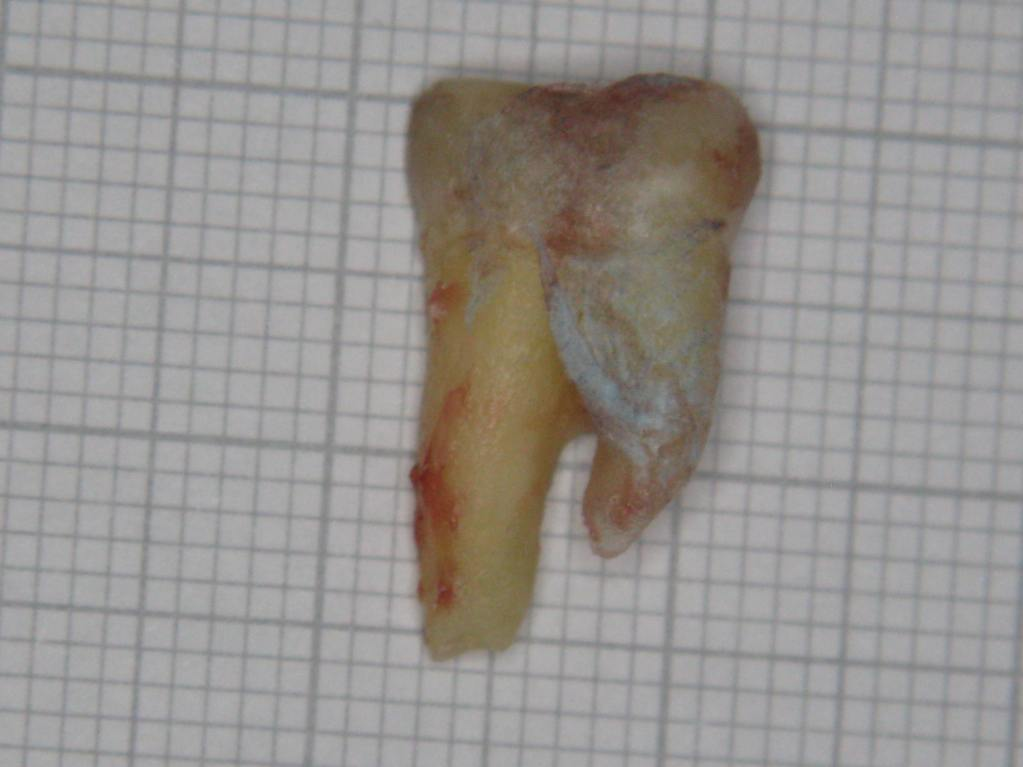 molar-47-extracted-buccal-view-1