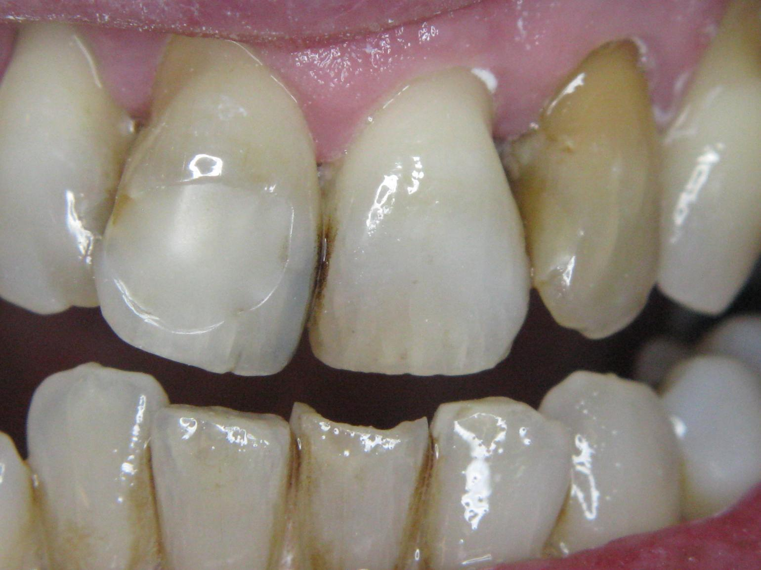 Incisors after sandblasting