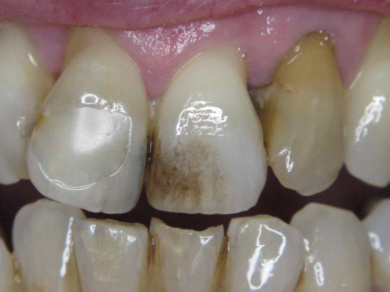 Incisors stained