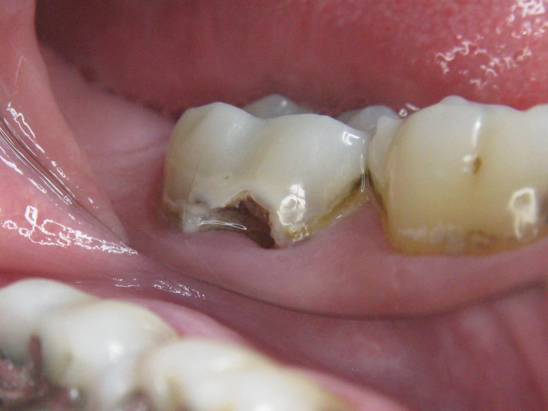 Molar 3.7 cavity