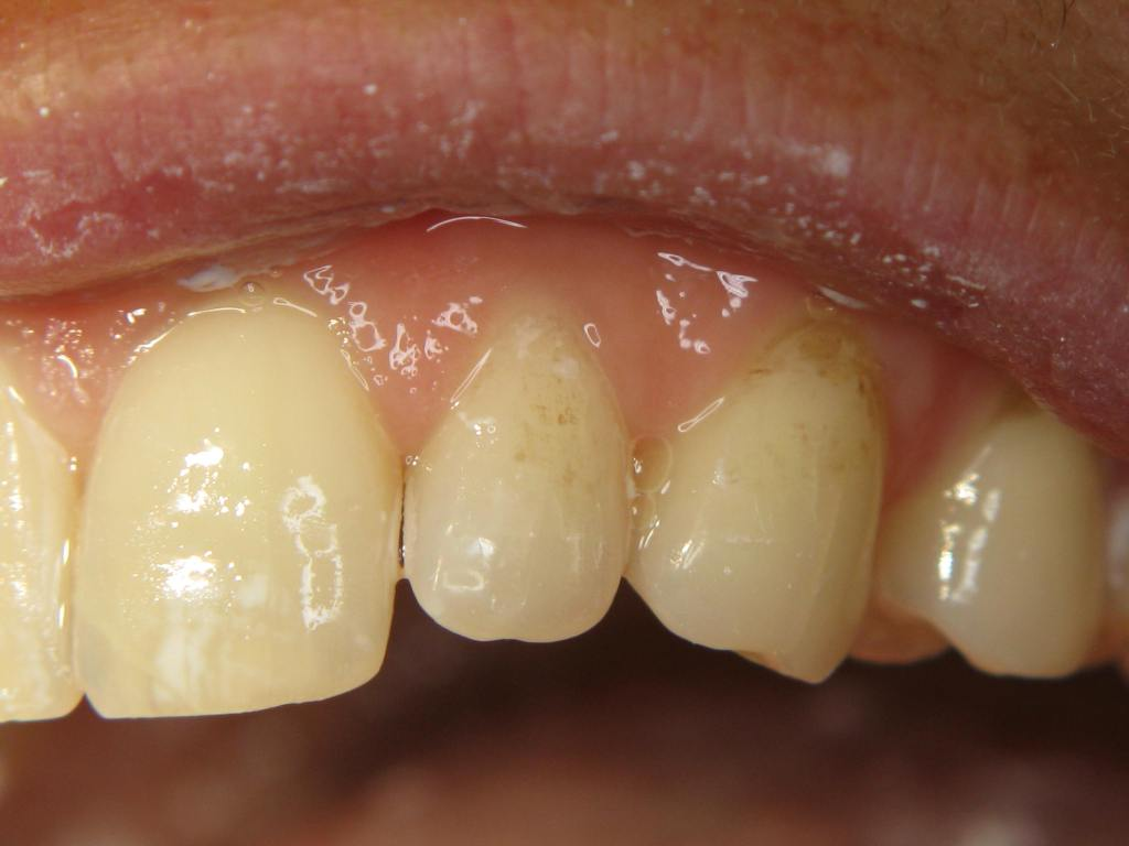 incisors 2.2 (2)