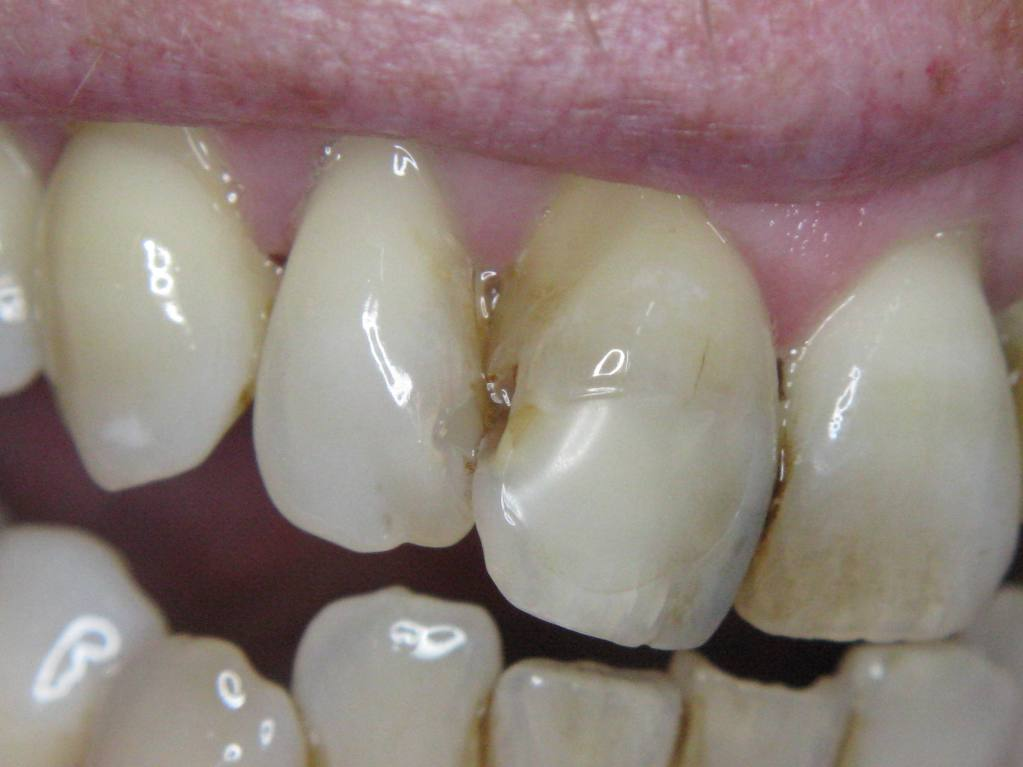 Cavity incisor 11 lateral