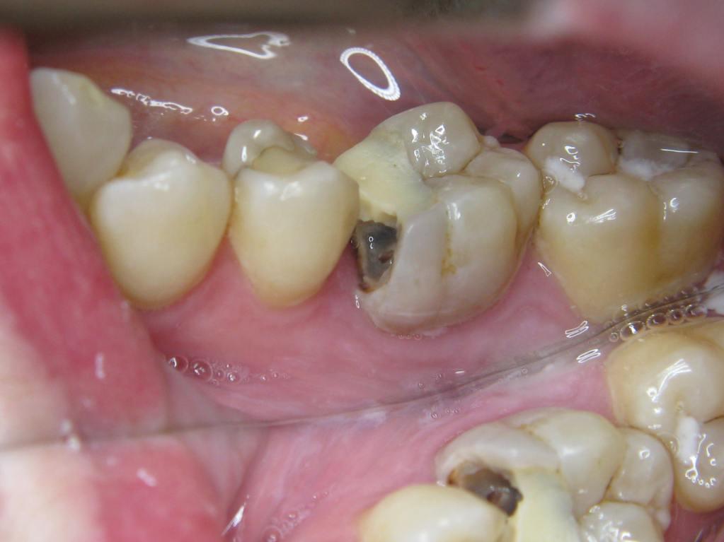 Molar 4.6 cavity (2)