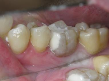 Molar 4.6 GCP filling (2)