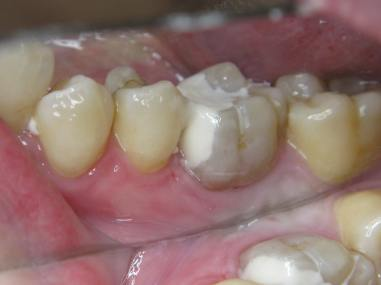 Molar 4.6 GCP filling