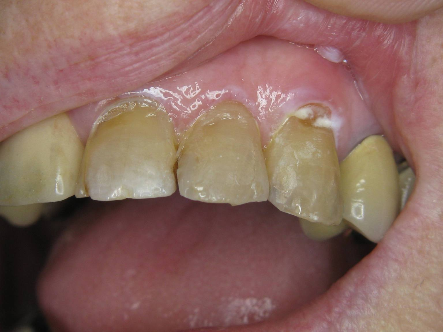 Incisors 2.2 2.3 composite repairs